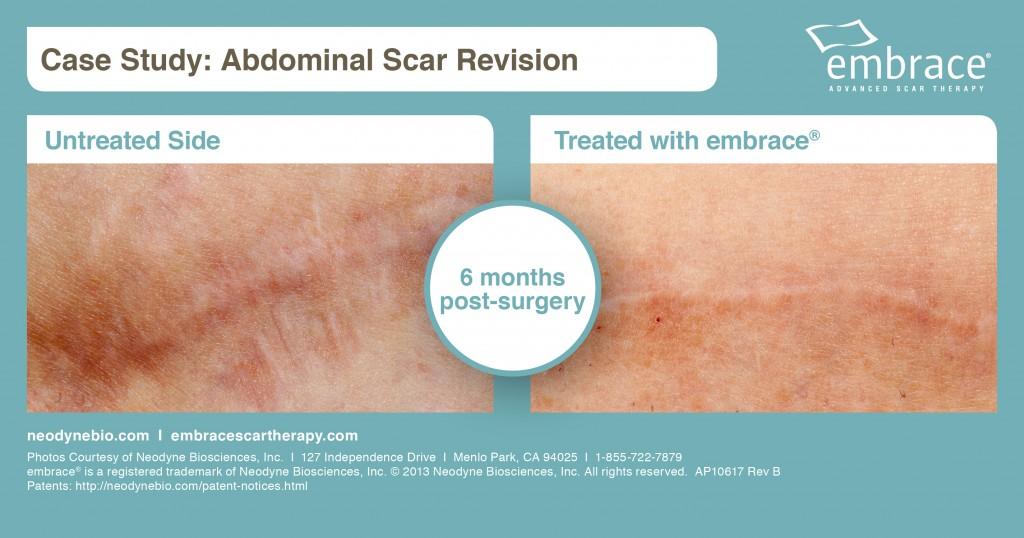Abdominal Scar Revision - AP10617 Rev B