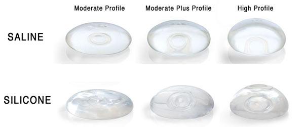 silicone-vs-saline-breast-implant-2